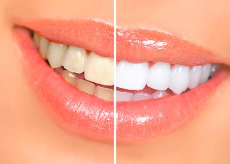blanqueamiento dental fernandez ycasquero clinica dental malaga