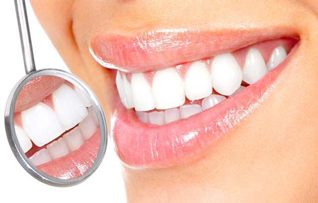 blanqueamiento dental fernandez y casquero