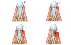periodoncia clinica dental fernandez y casquero