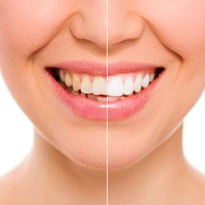 blanqueamiento dental fernandez y casquero clinica malaga
