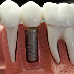 implantologia fernandez y casquero