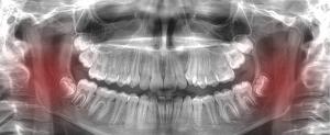 ATM mandibular clinica dental fernandez y fajardo