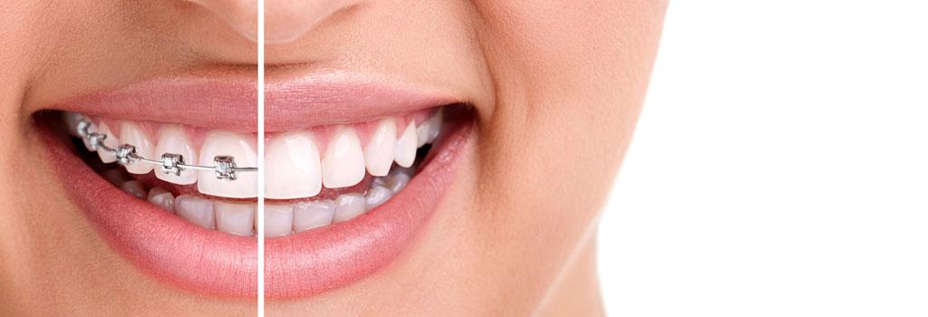 ortodoncia clinica dental fernandez y casquero